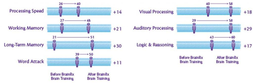 Why Choose Brainrx